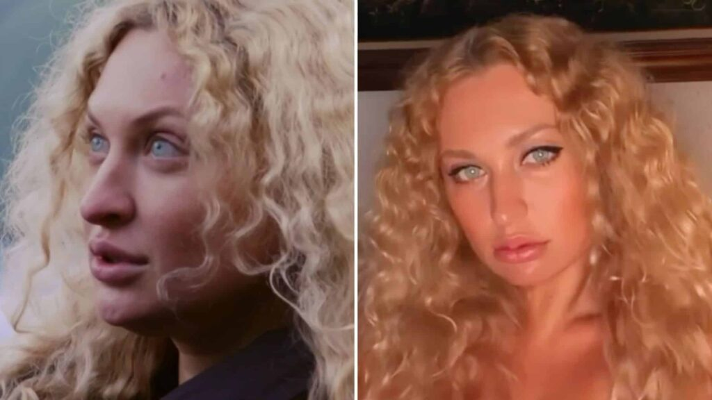 90 Day fiancé's Natalie Mordovtseva has had surgery done on her nose!